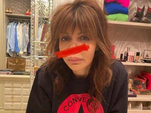 «Я тяжело больна». Экс-жена Аршавина, лишившаяся носа, уже не может ходить